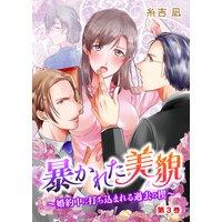 暴かれた美貌〜婚約中に打ち込まれる過去の楔〜 (3)